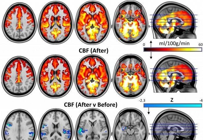 Magic Mushrooms Can Reset The Brain