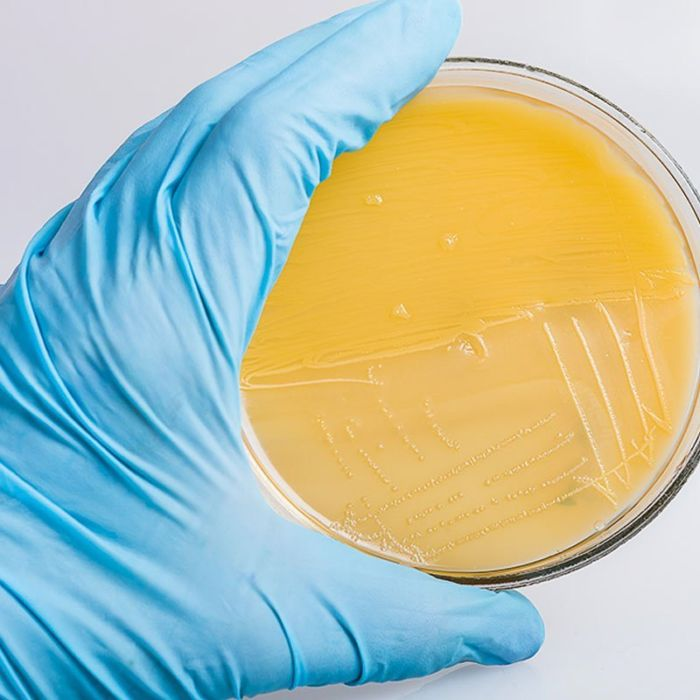 Sterile Agar Dish - Spirit Molecule Mycology Store
